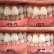 3511C715-C847-4DF2-A732-DEBB9959B333